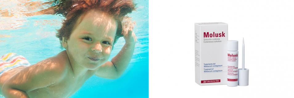 Molusk Solución cutánea KOH 10%: un tratamiento rápido, eficaz e indoloro contra el Molluscum contagiosum