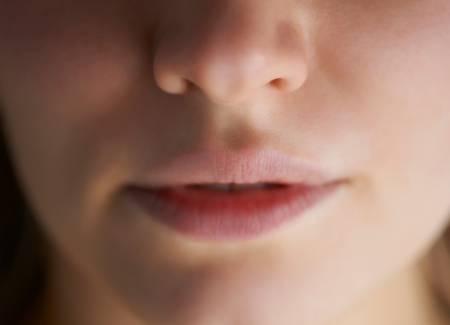 Rosácea: causas, síntomas y tratamiento
