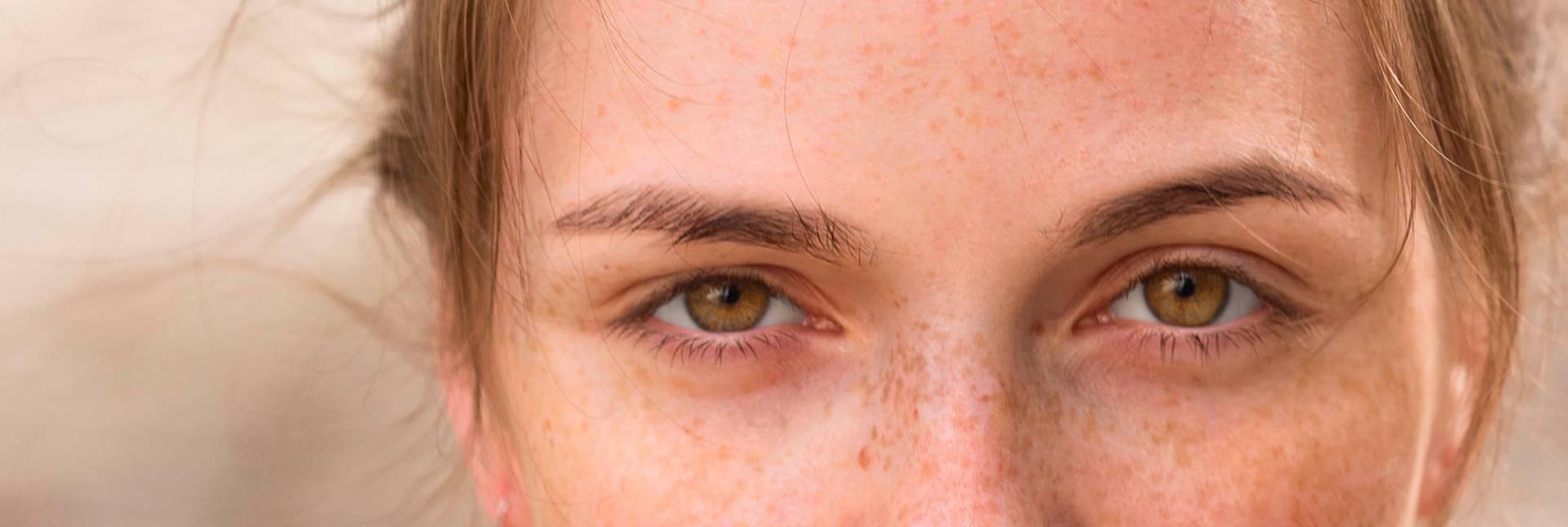 Cómo tratar las alergias oculares