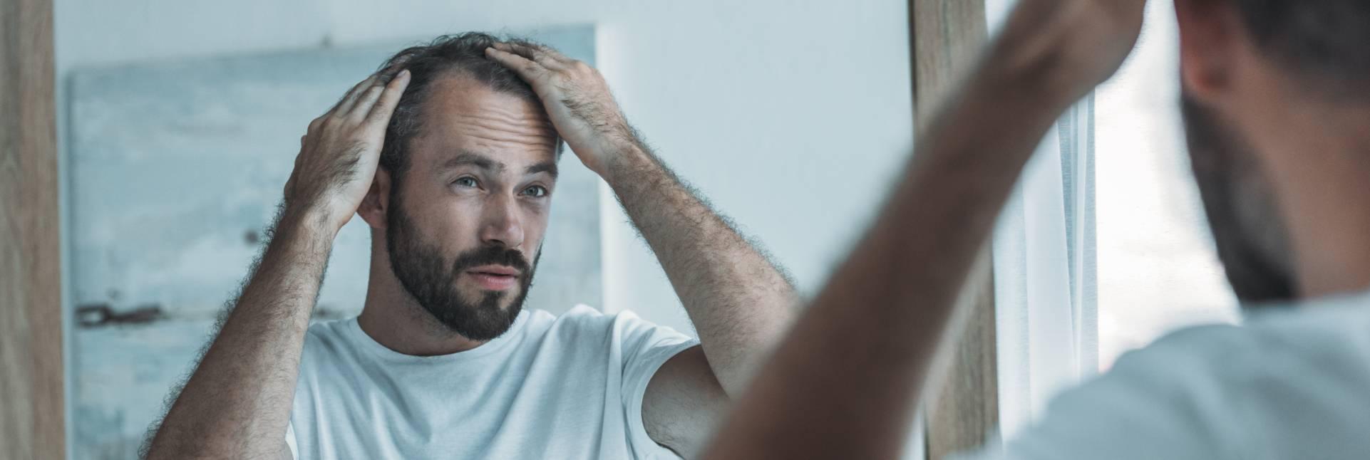 La alopecia difusa: tipos, causas y tratamiento