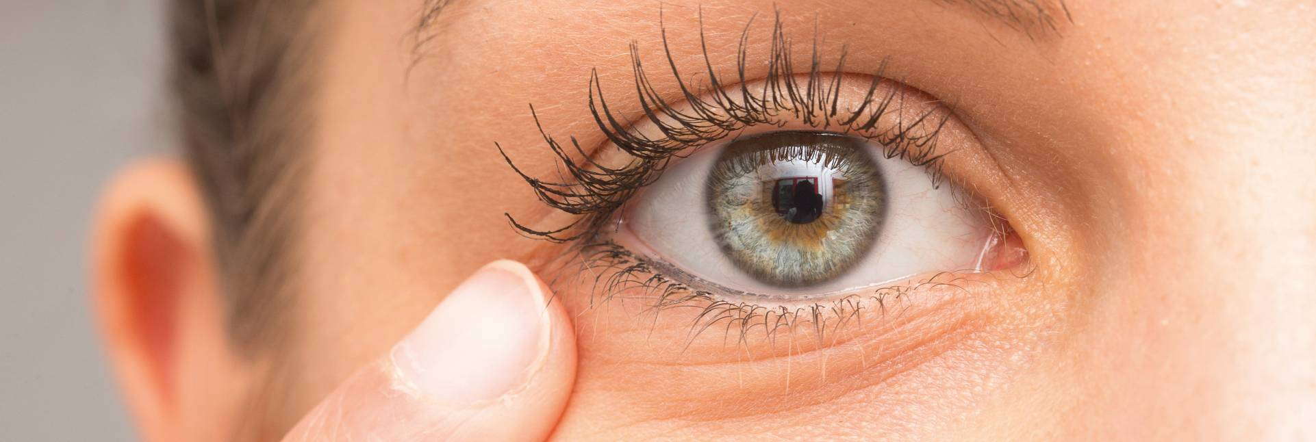 Cómo tratar el ojo seco